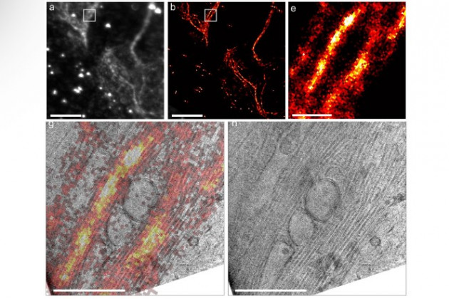 Cryo super-resolution CLEM imaging of mammalian cells