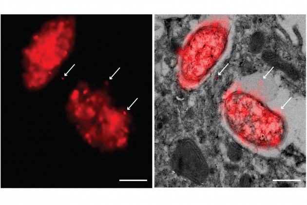 Super-resolution CLEM imaging of Salmonella-host interactions