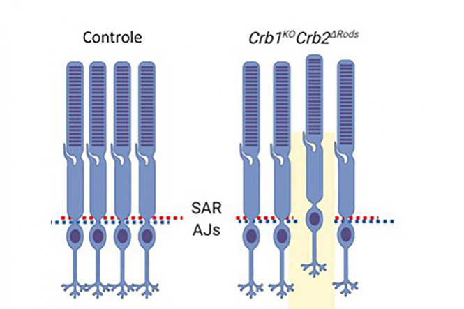 CRB2 Loss in Rod Photoreceptors